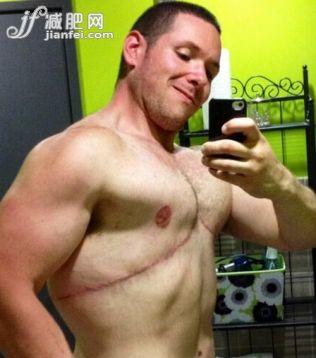 蜗牛扑克:惊呆了!美国胖男两年减掉92公斤